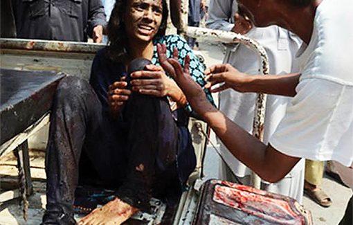 Bomb attack victim still suffers